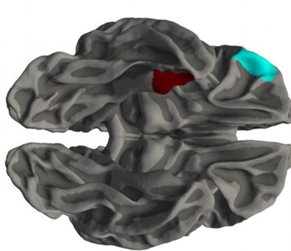 . @NeuroscienceNew reports #ADHD brain study by @unisouthampton @Cambridge_Uni @SapienzaRoma